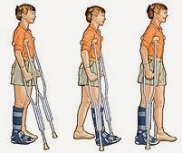 Resultado de imagen de como caminar con muletas