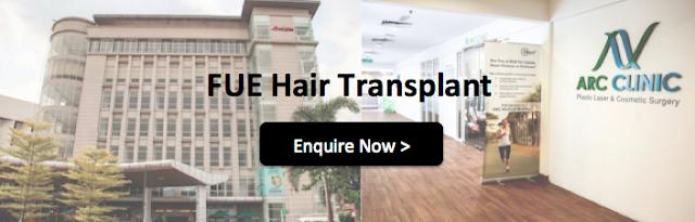 Hair Transplant Malaysia