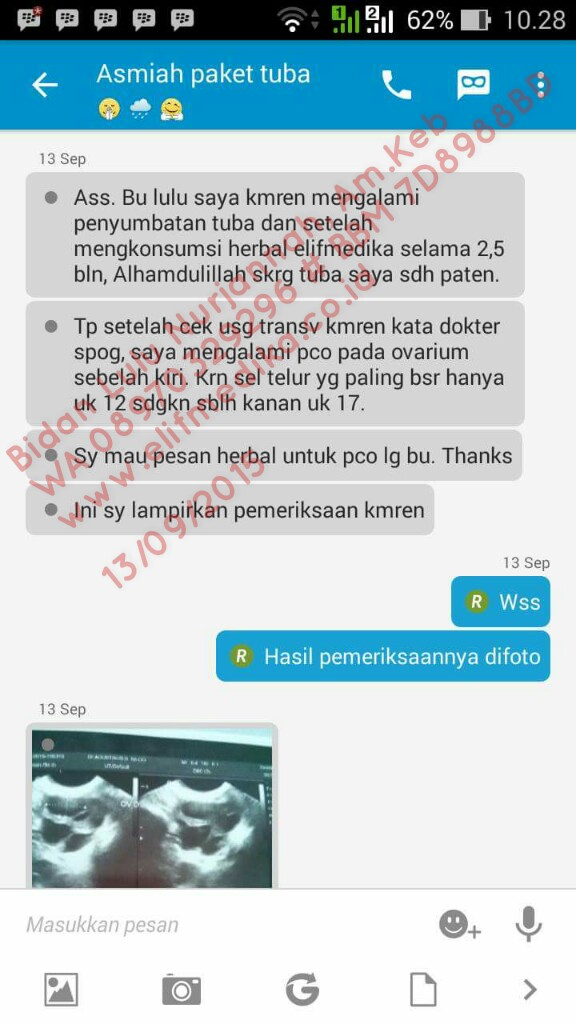 Testimoni kedua Tuba Non Paten Setelah Treatment 2,5 bulan Positif Hamil