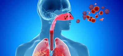 Enfermedades respiratorias crónicas