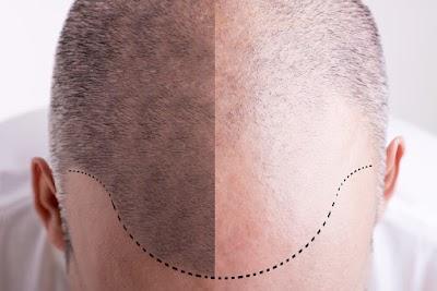 هل يمكن لعملية زرع الشعر أن تسبب السرطان؟ اجابات عن كل الاسئلة