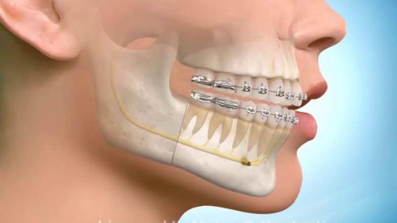 Erken diş teli tedavisi çene ameliyatından kurtarıyor