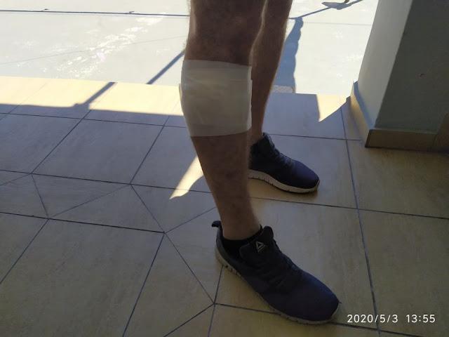 Στυλίδα: Αδέσποτα επιτέθηκαν σε ποδηλάτη
