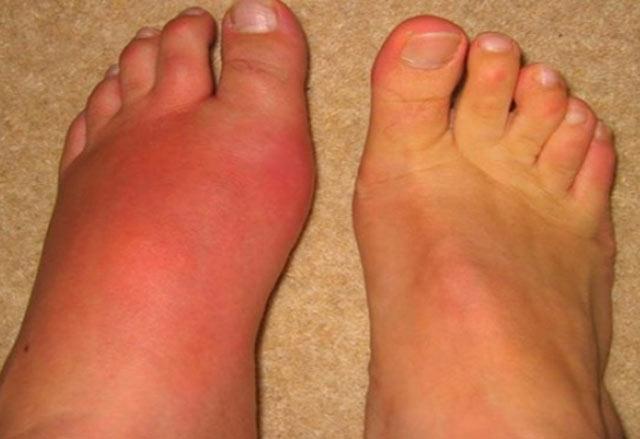 Penyakit asam urat merupakan oenyakit arthritis. Orang tua dahulu menyebut istilah penyakit ini dengan sebutan encok. Gejalanya, bagian organ merah, bengkak dan rasa sakit secara tiba-tiba.
