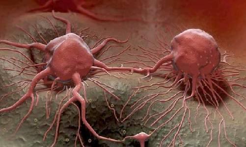 Inilah 25 Penyebab Kanker Payudara Gejala Awal