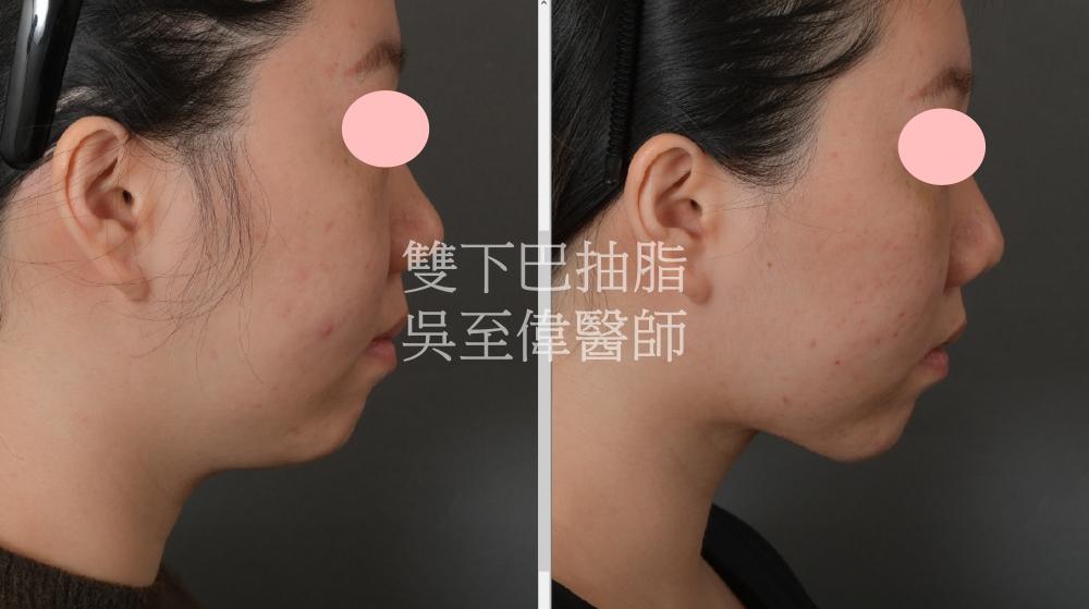2021年三月最新案例,雙下巴與下臉龐抽脂,在多數的案例可達到近似下臉拉皮的效果,拉皮手術權威吳至偉醫師