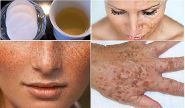 como se limpia la cara
