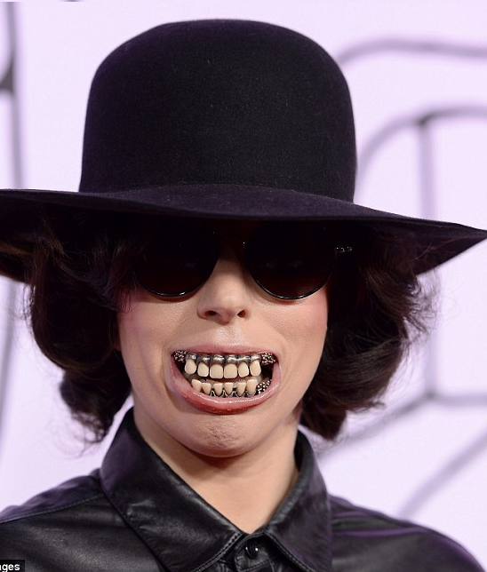 Oh No! See What Lady Gaga Did To Her Mouth For The YouTube