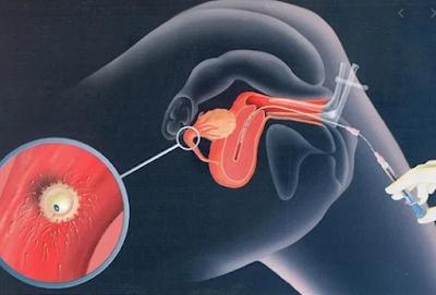 inseminasi buatan mencegah penyakit menular