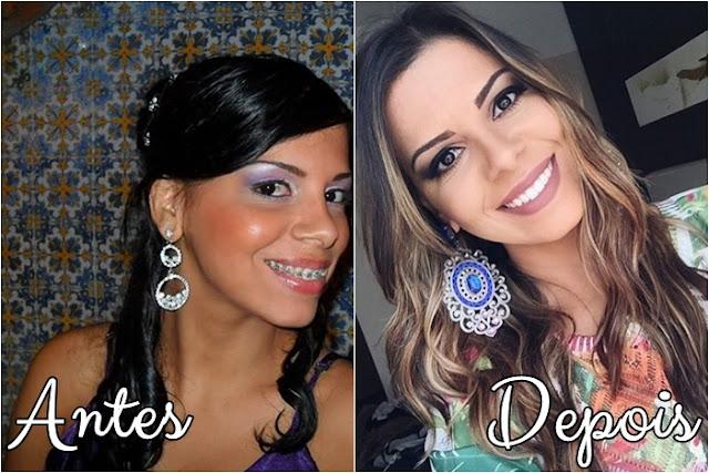 Antes e Depois das Youtubers Famosas-Blog Garota Estrela