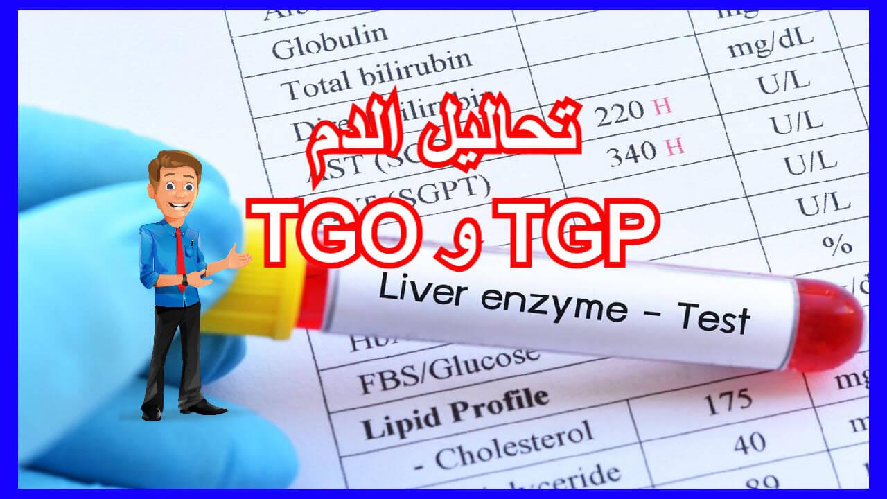 تحاليل الدم Tgo و Tgp