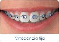 Brackets (Ortodoncia fija). Lo que usted debería saber.