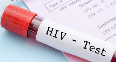 Pruebas de detección del VIH
