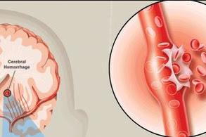 Pendarahaan di Otak : Penyebab, gejala dan Pengobatannya