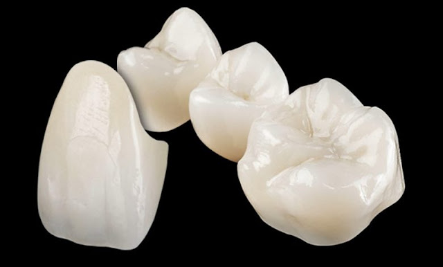 Zirconia dental crown and bridge at Jamnagar
