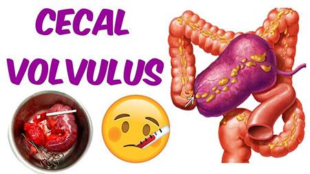 Cecal volvulus, Cecal bascule