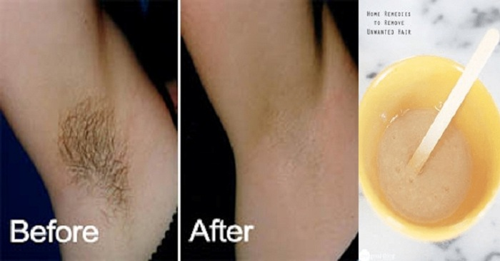 Fastest Way on How to Remove Underarm Hair Without Waxing and Shaving..