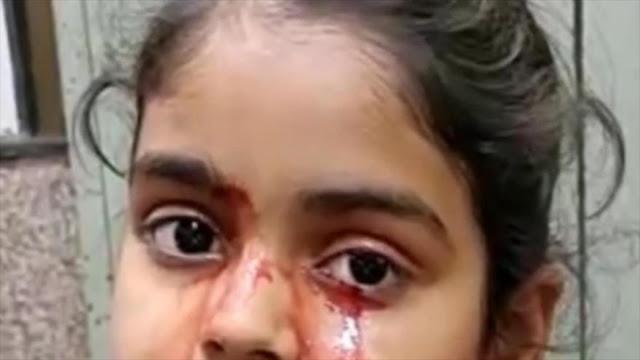 Una niña india llora sangre y los médicos aún no tienen respuesta