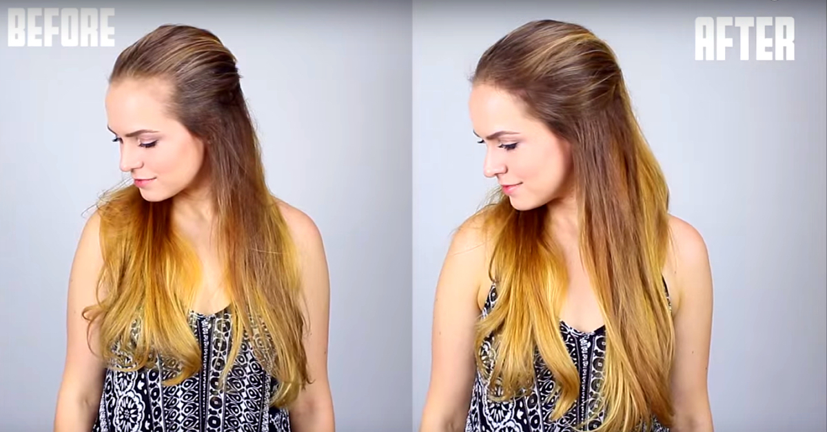 Ways To Cover Thin And Receding Hairline