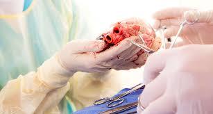 ह्रदय प्रत्यारोपण Heart transplant