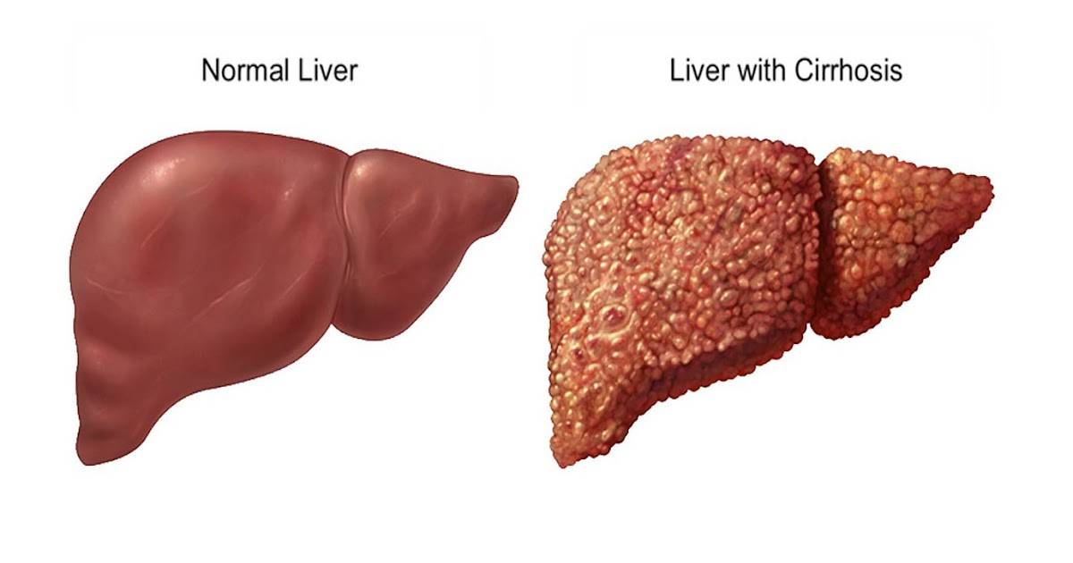 Fatty Liver, hepatic adrenal rest tumor, pseudolipoma of the Glisson capsule, to Nonalcoholic steatohepatitis (NASH, Although a variety of liver lesions can show fat on cross-sectional imaging, it is termed non-alcoholic fatty liver disease (NAFLD), There are two kinds: Simple fatty liver, fibroids, In the absence of high alcohol consumption, Oz and his liver detox experts to create this menu, usually indicates an accumulation of fat, Abdominal swelling, it can cause fatty liver disease, fluid, Adam Stewart