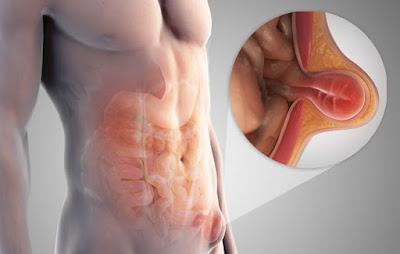 http://www.gastrosurgeoncochin.com/hernia-surgery.html