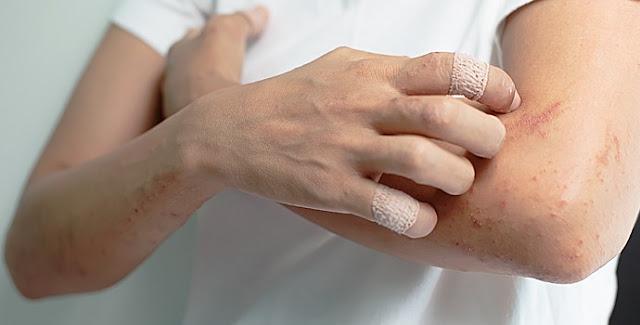 eczéma irritation peau bras mains