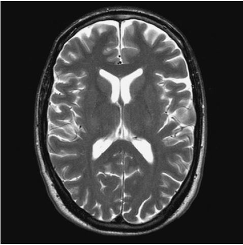 brain scan mri radtechonduty