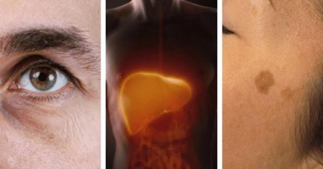 5 početnih znakova upozorenja za probleme s jetrom