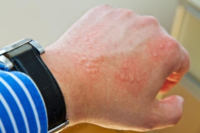 7 doenças que causam manchas vermelhas na pele - Dicas Online