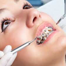 Best Dental Cloinic in Nagpur