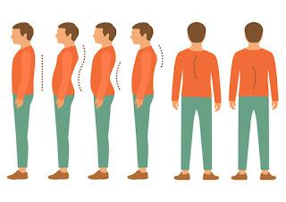 脊椎側彎, 脊椎側彎背架, 脊椎度數, 脊椎側彎矯正, 脊椎側彎治療, schroth運動, schroth脊椎側彎, 德國Schroth, 脊椎側彎矯正運動