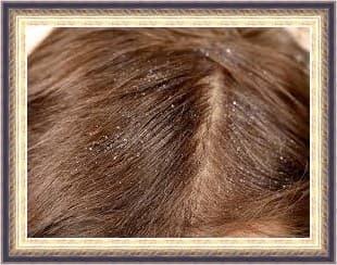 اسباب قشرة الشعر عند النساء