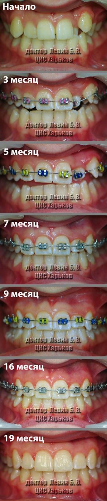 серия фотографий отражающая этапы ортодонтического лечения на протяжении 19 месяцев