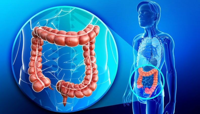 13 Penyebab Kanker Usus Besar yang Mematikan, WAJIB BACA