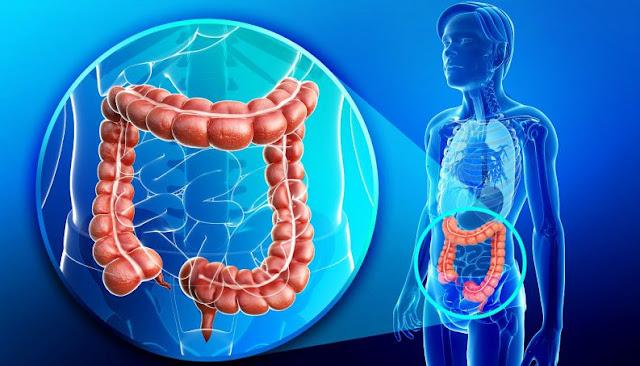 13 Penyebab Kanker Usus Besar yang Mematikan