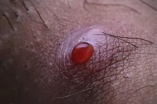 Scalp Folliculitis Treatment