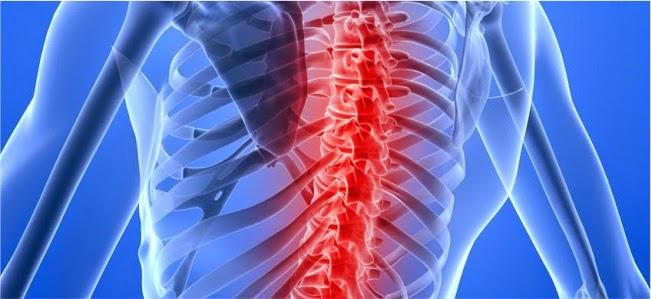 Resultado de imagen para atrofia muscular espinal