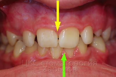 Несоответствие средней линии верхнего и нижнего зубного ряда