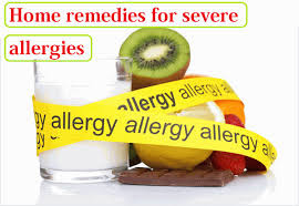 Home remedies for severe allergies