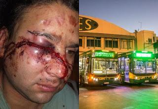 Al conductor de la línea 85 le desfiguraron la cara en Quilmes cuando salía de su casa.