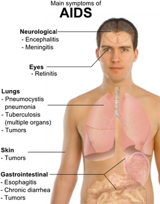 Viral Infections: Types, Treatment, and Prevention