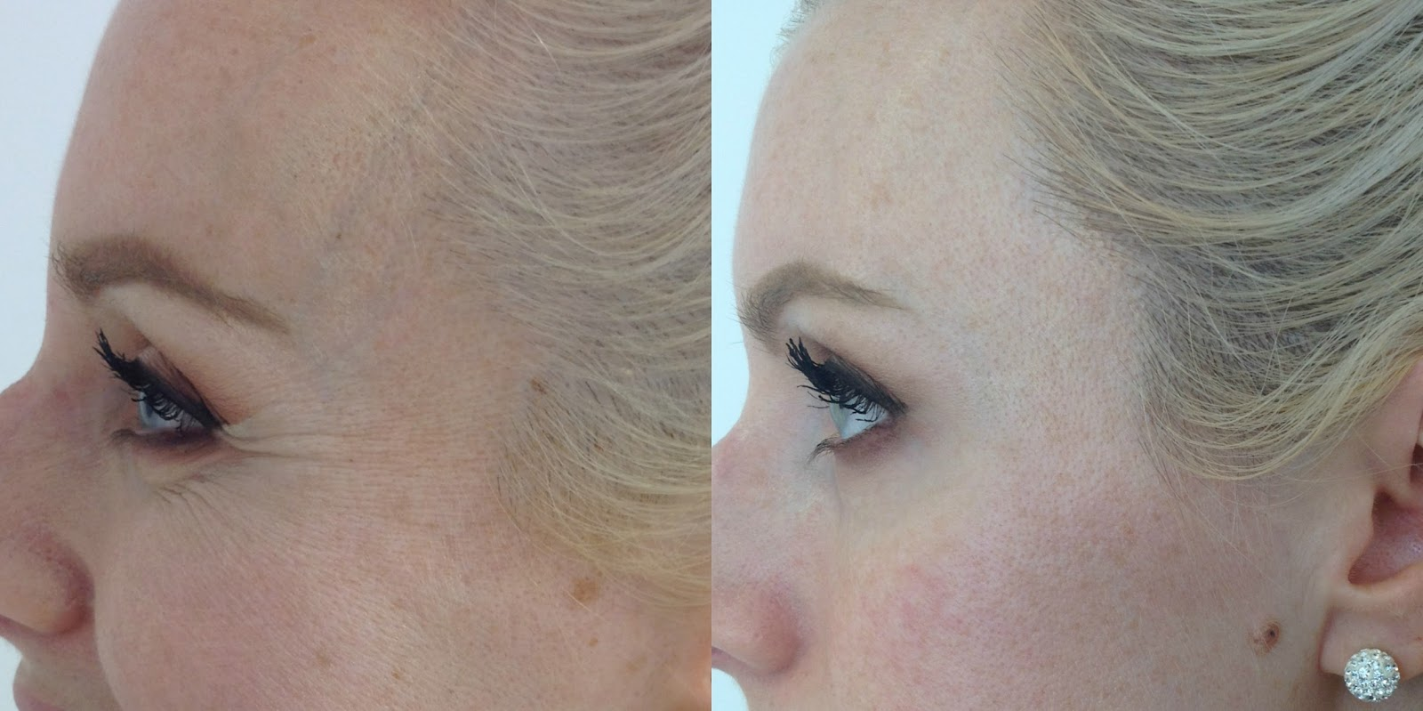 Before and after botox, crows feet, Dr Mark Holmes, botox, wrinkles
