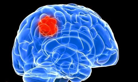 Waspada Penyakit Tumor Otak! | Artikel Informasi Indonesia