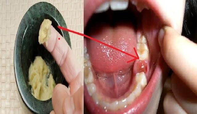 Kabar Gembira..!! Yang Giginya Berlubang, Tak Perlu Ke Dokter Gigi? Cara Ini Bisa Sembuhkan Sakit Gigi Kronis Dalam Waktu 5 Detik Saja..!! Ini Bahannya Dan Begini Caranya…