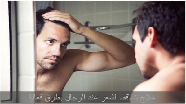 علاج تساقط الشعر عند الرجال - اسباب تساقط الشعر عند الرجال - اسباب الصلع عند الرجال