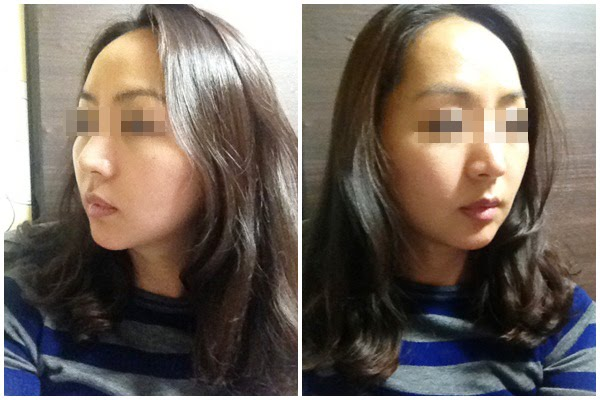 짱이뻐! - My Diary of Lifting Plastic Surgery in Korea Part 2