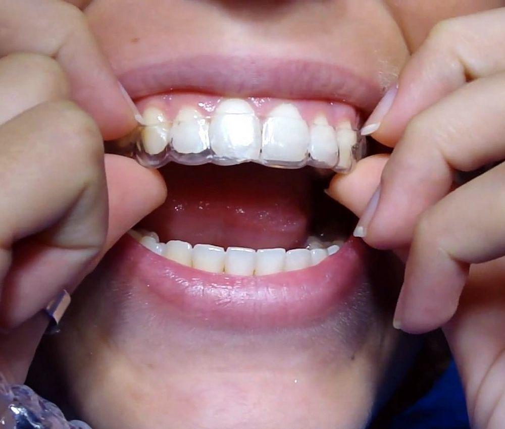 contencion-ortodoncia