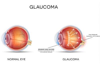 che cosa è il glaucoma