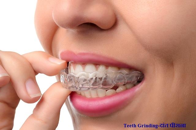 Teeth Grinding-दांत पीसना